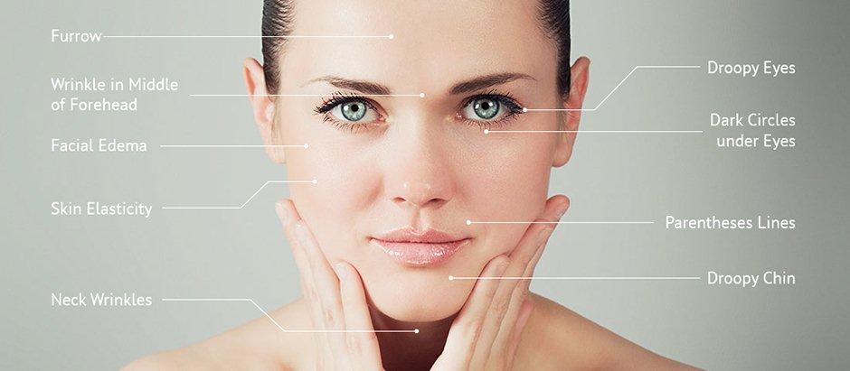 Facial_Acupuncture