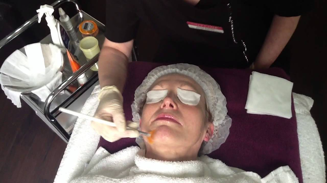 neostrate cosmetic peel application